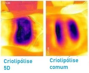 termografia criolipólise