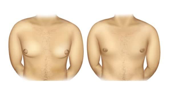 lipomastia tratamento não invasivo